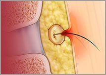 Endoscopic Pilonidal Sinus Treatment